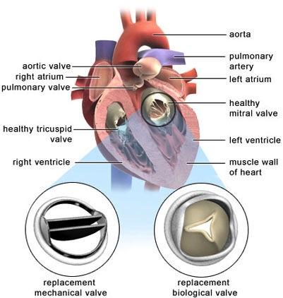 Pulmonary flow murmur in adults